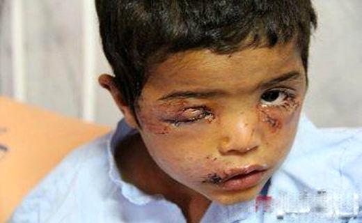حمله دلخراش سگ ولگرد به کودک 3 ساله+عکس